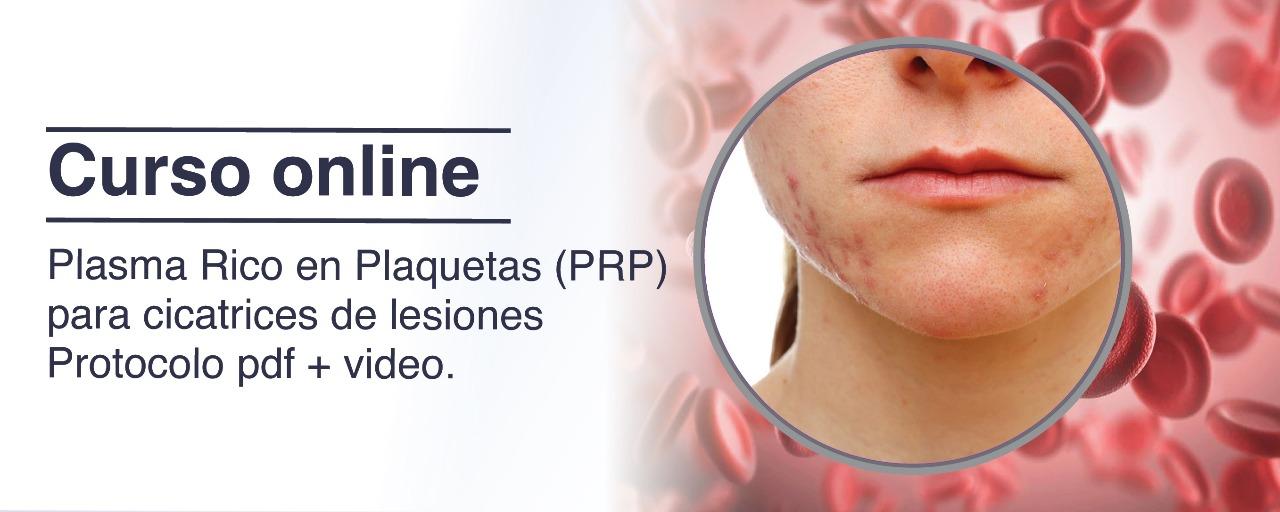 prp_lesiones